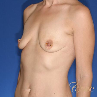 28 year old had a Lollipop Breast Lift with Silicone Implants before 3502146