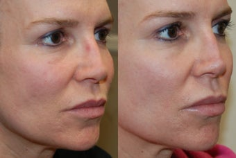 Permanent Lip Augmentation with Silikon-1000 before 1327191