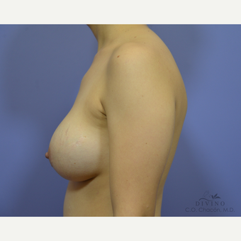 25-34 year old woman treated with Breast Implant Revision before 3421694