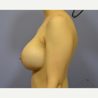 25-34 year old woman treated with Breast Implant Revision after 3421694