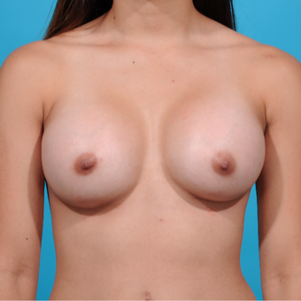 18-24 year old woman treated with Breast Implants after 3260647