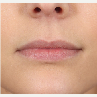 25-34 year old female treated with Juvederm to augment her lips before 2866154