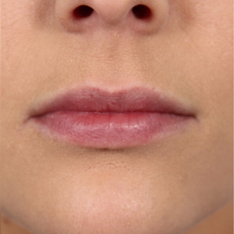 25-34 year old female treated with Juvederm to augment her lips after 2866154
