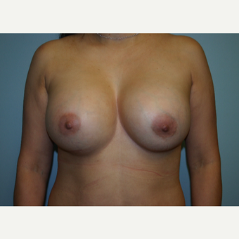 Silicone to Saline Breast Implant Exchange after 3038050