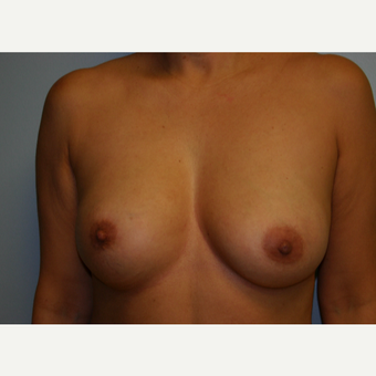 Silicone to Saline Breast Implant Exchange before 3038050