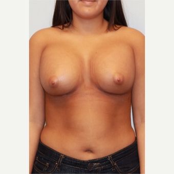 18-24 year old woman treated with Breast Augmentation after 3026962