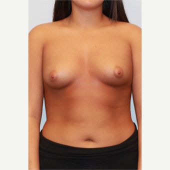 18-24 year old woman treated with Breast Augmentation before 3026962