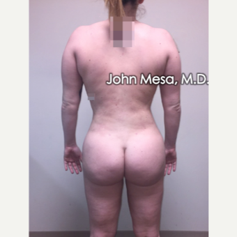 25-34 year old woman treated with Brazilian Butt Lift after 3777603