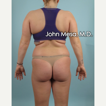 25-34 year old woman treated with Brazilian Butt Lift before 3777603
