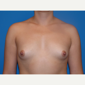 Breast Augmentation before 3806946