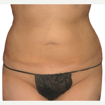 25-34 year old woman treated with Smart Lipo after 3634954