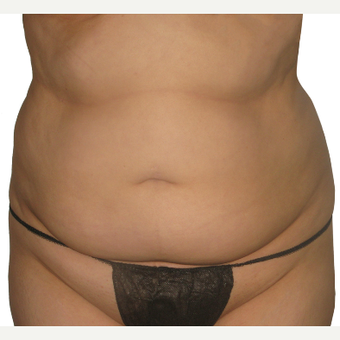 25-34 year old woman treated with Smart Lipo before 3634954