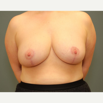 35-44 year old woman requesting a Breast Reduction after 3084472