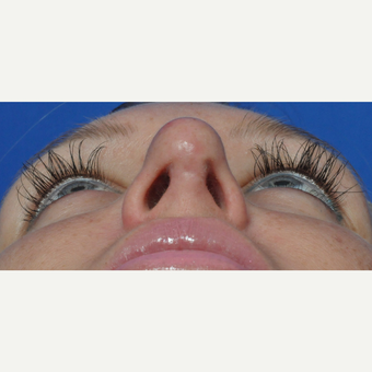 25-34 year old woman treated with Rhinoplasty before 3440953