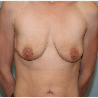 25-34 year old woman treated with Breast Lift with Implants before 3486914