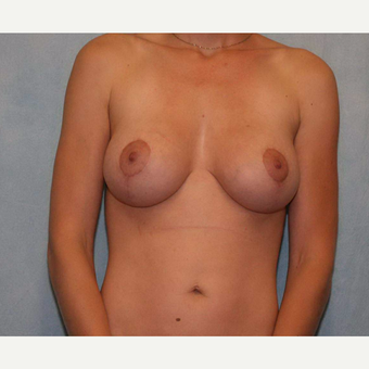 25-34 year old woman treated with Breast Lift with Implants after 3486914