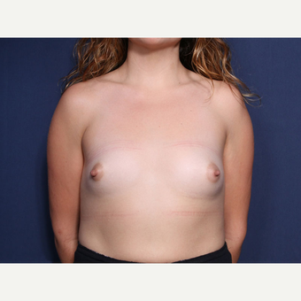 25-34 year old woman treated with Breast Augmentation (view 1 of 2) before 3213657