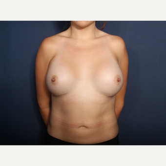 25-34 year old woman treated with Breast Augmentation (view 1 of 2) after 3213657