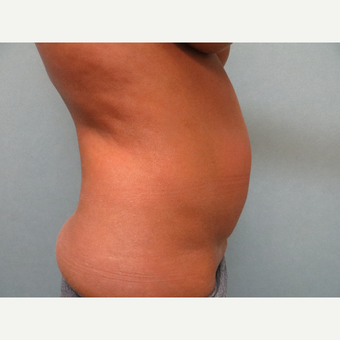 35-44 year old woman treated with Tummy Tuck before 3300139
