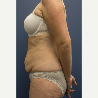 45-54 year old woman treated with Tummy Tuck before 3739618