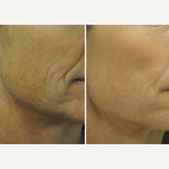 45-54 year old woman treated with Laser Resurfacing before 3776824