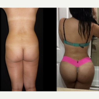18-24 year old woman treated with Brazilian Butt Lift before 3680309