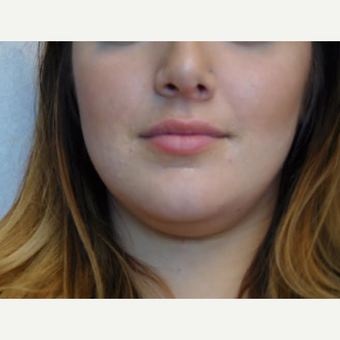 25-34 year old woman treated with Lip Augmentation before 2999150