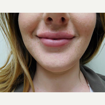 25-34 year old woman treated with Lip Augmentation after 2999150