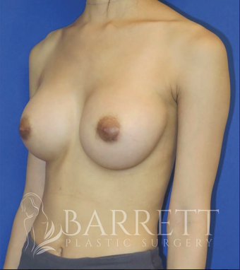 25-34 year old woman treated with Breast Implants 3584363