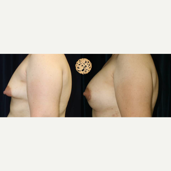 35-44 year old woman treated with Breast Augmentation after 3283403