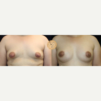 35-44 year old woman treated with Breast Augmentation before 3283403