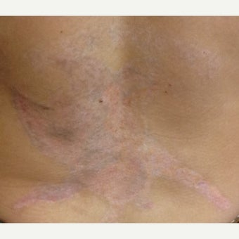 25-34 year old man treated with PicoSure after 1579258
