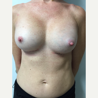 35-44 year old woman treated with Gummy Bear Breast Implants after 3082391