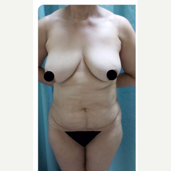 35-44 year old woman treated with Tummy Tuck before 3706804