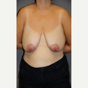35-44 year old woman treated with Breast Lift before 3140667