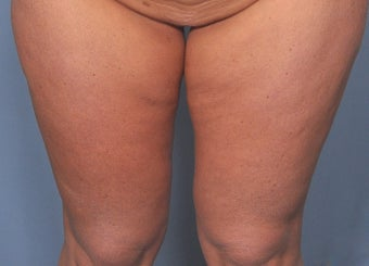 35 Year Old Female Treated For Abdominal and Thigh Skin Excess before 920529