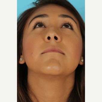25-34 year old woman treated with Rhinoplasty before 3690975