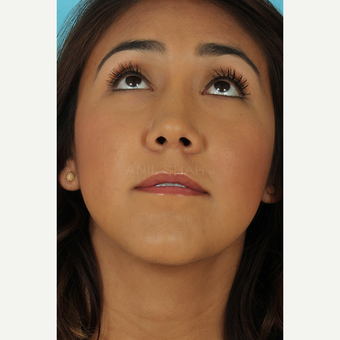 25-34 year old woman treated with Rhinoplasty after 3690975
