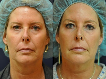56 Year Old Female Before/After Ultherapy Full Face before 1053225