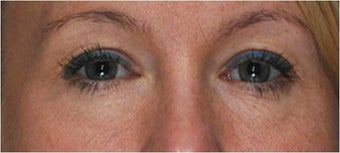 Blepharoplasty after 292965