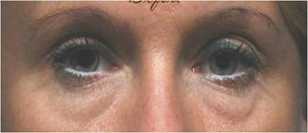 Blepharoplasty before 292965
