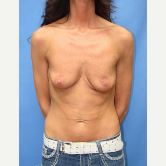 35-44 year old woman treated with Breast Augmentation before 3095496