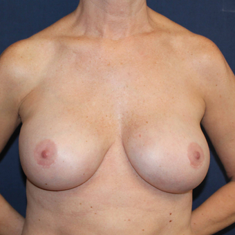 45-54 year old woman treated with Breast Implant Revision after 3739064