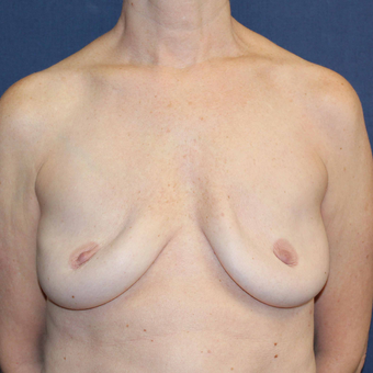 45-54 year old woman treated with Breast Implant Revision before 3739064