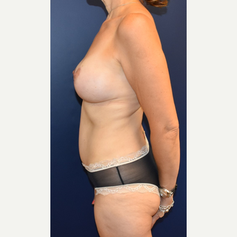 45-54 year old woman treated with Breast Lift with Implants after 3294028