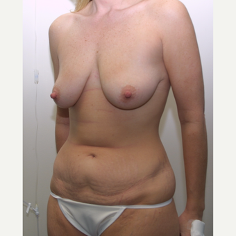 35-44 year old woman treated with Mommy Makeover before 3512536