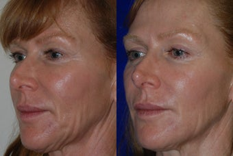 Liquid Facelift  before 1376653