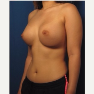 18-24 year old woman treated with Breast Augmentation after 3326811