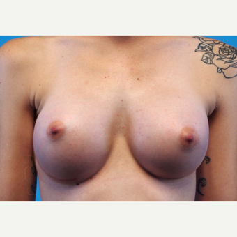 25-34 year old woman treated with Breast Implants after 3440946