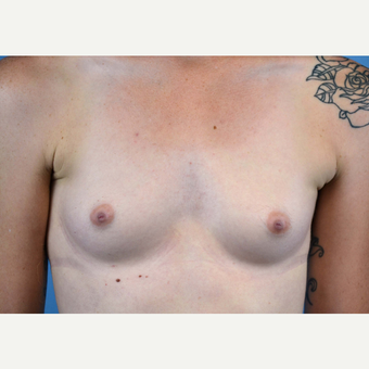 25-34 year old woman treated with Breast Implants before 3440946